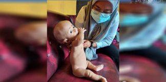 Balita penderita gizi buruk Aiswah (10) bulan.